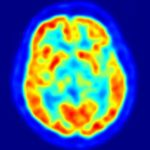 Jak odkrywamy działanie mózgu, cz. 3